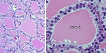 Figura 1: Follicoli (unità morfologica e funzionale)